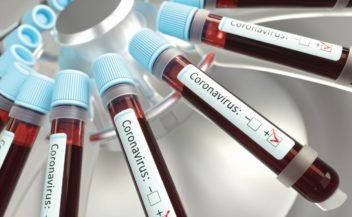coronavirus-respiratory-infections-viruses-35YSU5C